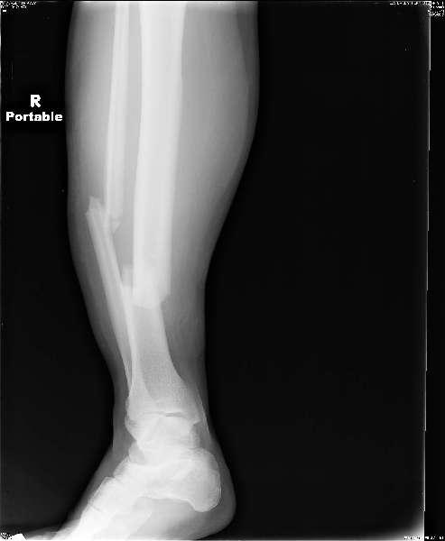 Health: Broken-leg--New-Pix-by-harvey